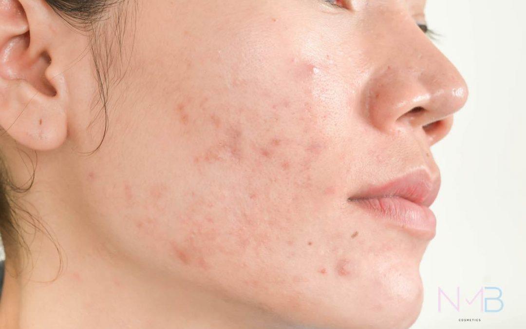 Rostro de una mujer con acné