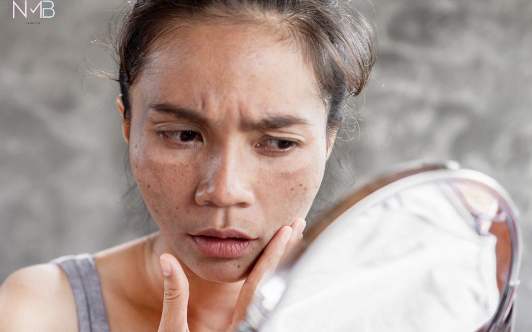 Blanqueamiento facial para tratar la hiperpigmentación